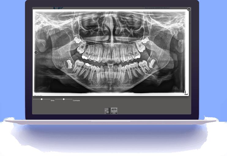 ortopanto2