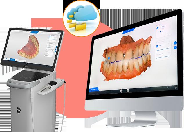 Escaner intraoral. Biocopia de inicio